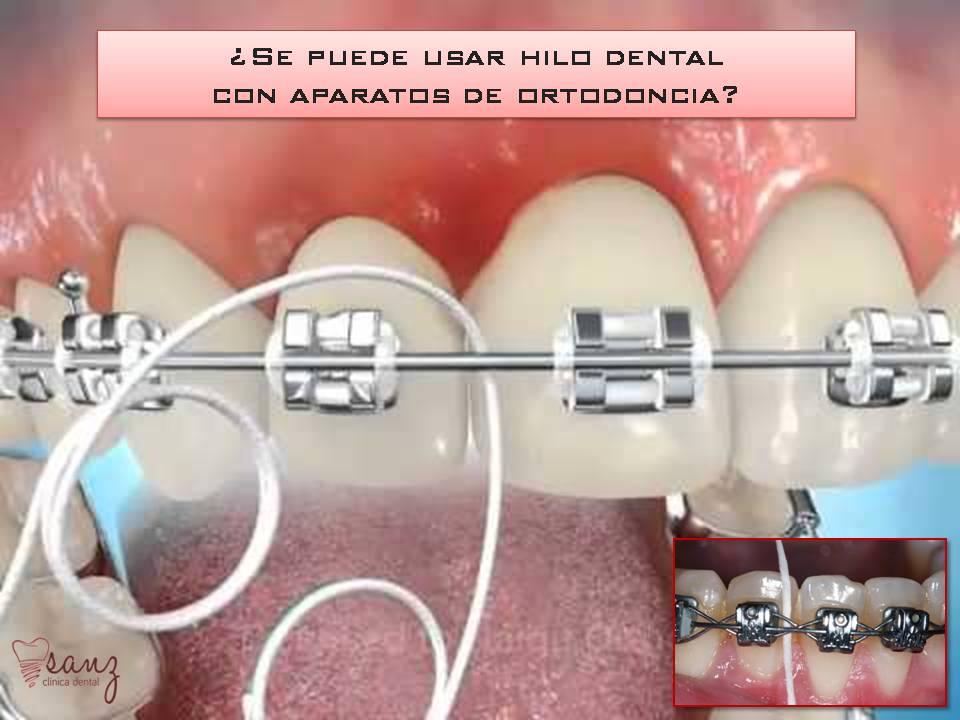 Como usar la seda dental con brackets