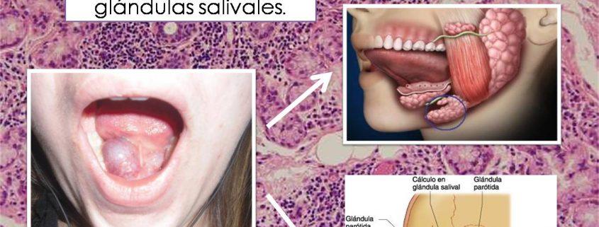 Glandula salival obstruida tratamiento